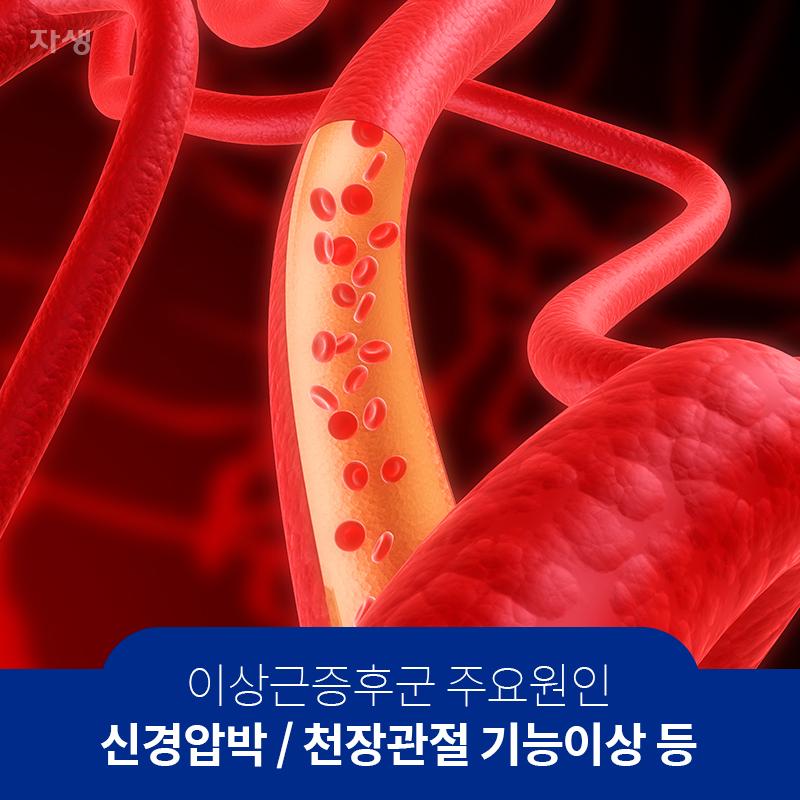 이상근증후군 주요원인 신경압박 / 천장관절 기능이상 등 | 자생한방병원·자생의료재단