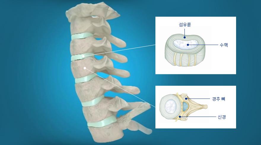 목디스크 구성 - 섬유륜, 수핵, 경추 뼈, 신경   자생의료재단