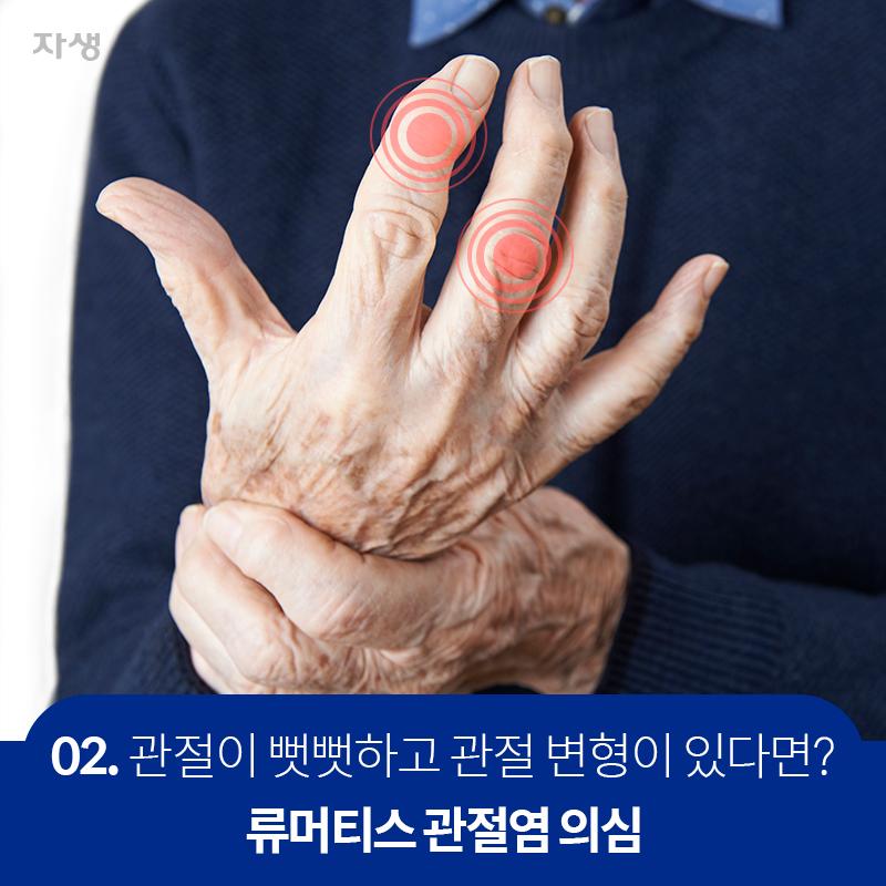 02 관절이 뻣뻣하고 관절 변형이 있다면? 류머티스 관절염 의심 | 자생한방병원·자생의료재단