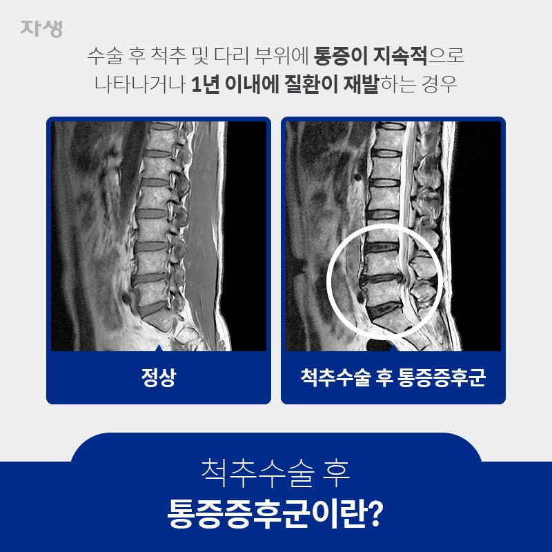 척추수술 후 통증증후군이란? 수술 후 척추 및 다리 부위에 통증이 지속적으로 나타나거나 1년 이내에 질환이 재발하는 경우 정상 / 척추수술 후 통증증후군 | 자생한방병원ㆍ자생의료재단