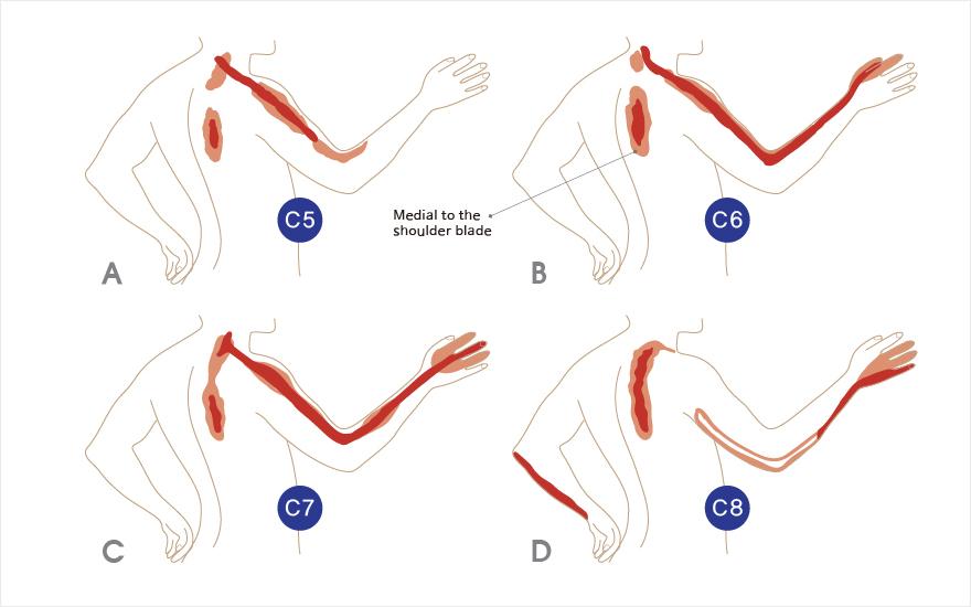 목디스크 이상 부위별 통증 - 경추 5번 6번 7번 8번 부위 | 자생의료재단