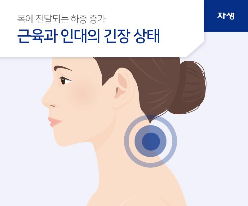 목에 전달되는 하중 증가 근육과 인대의 긴장 상태 | 자생의료재단